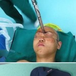 Surviving Amazing Stabbing Wounds…Unbelievable