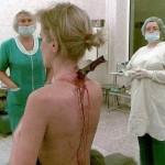 Surviving Amazing Stabbing Wounds…Unbelievable